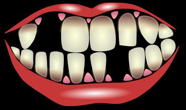 parodontitis - /medical/dental/dental_2/parodontitis.png.html